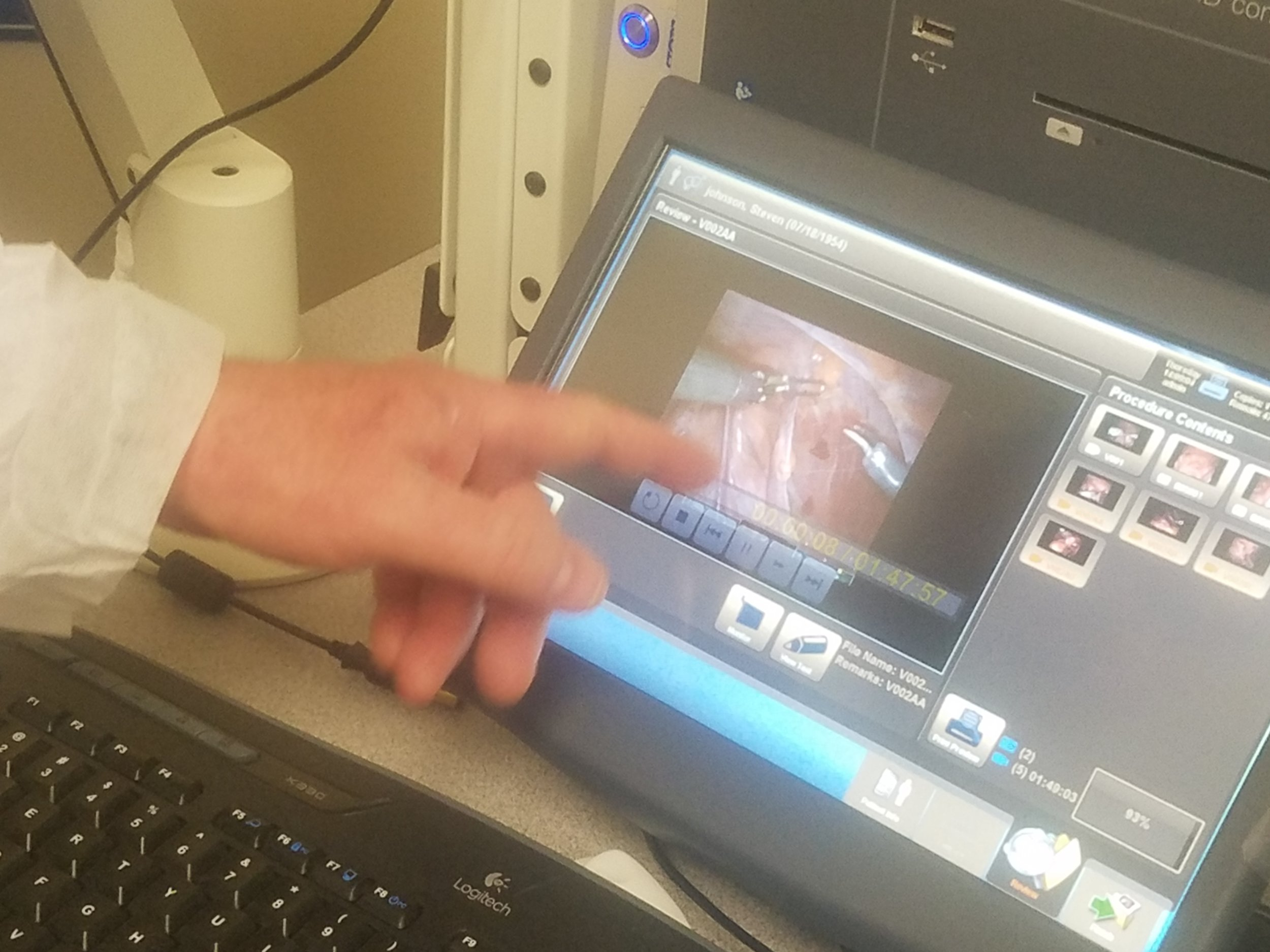 Dr. Canfield reviews Johnson's surgery and explains the  da Vinci  procedure.
