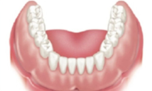 Denture snapped into place: Final result -
