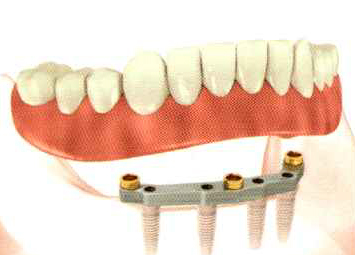Removable overdentures on an implant bar -
