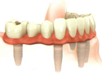 Fixed implant supported dentures -