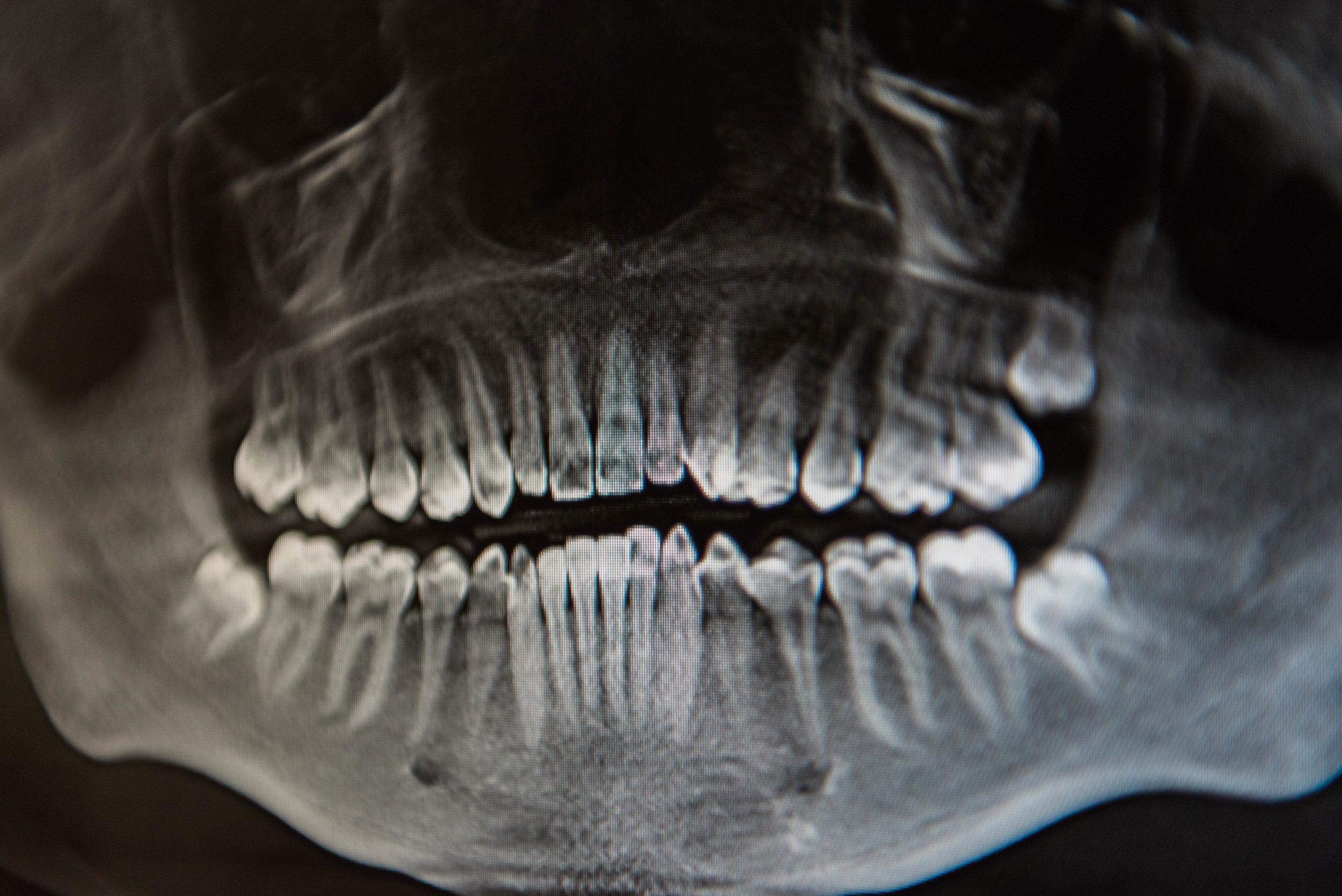Extractions Wisdom Teeth Michael A Kubiniec D D S