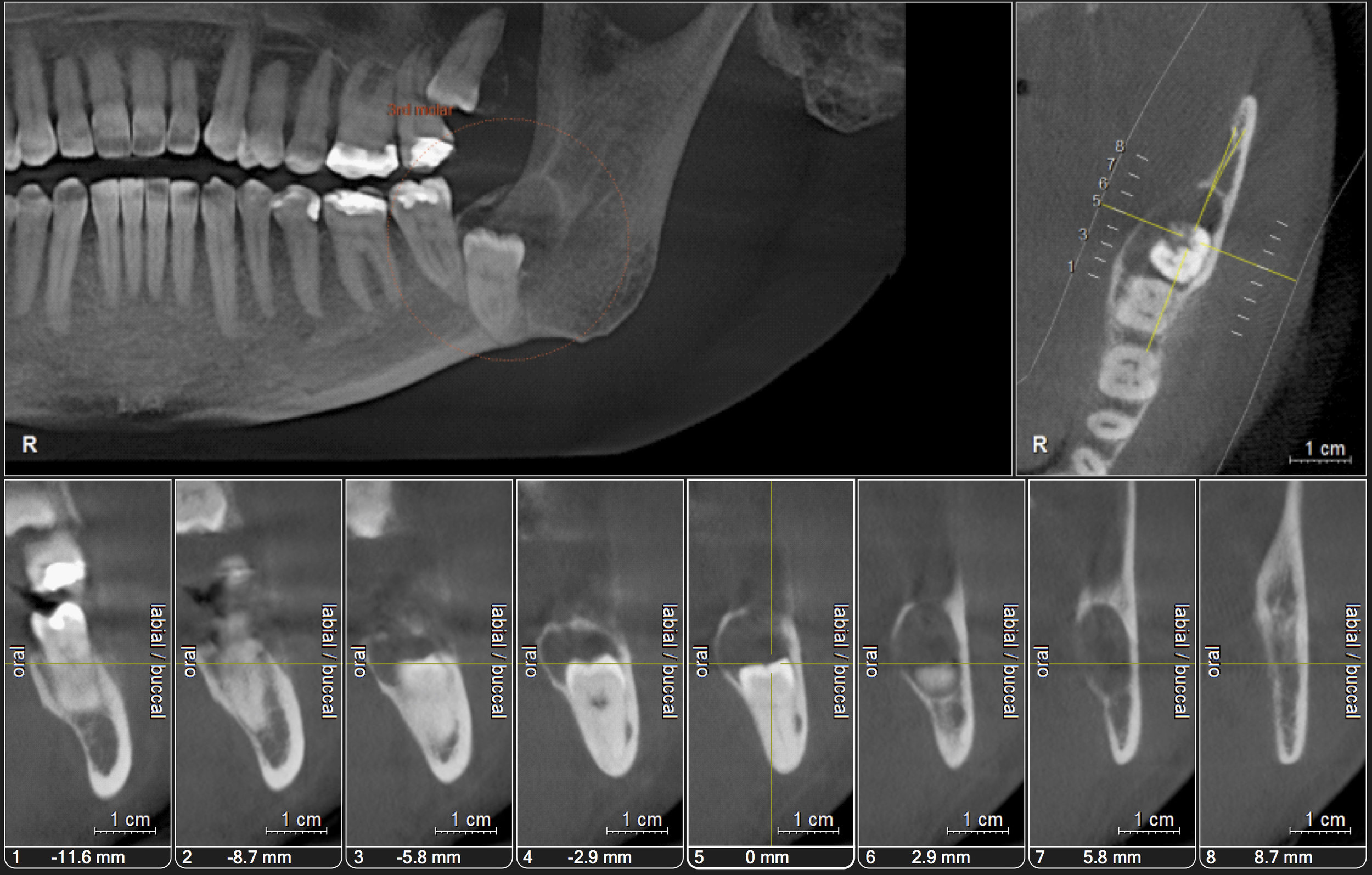 Wisdom Teeth X-Ray