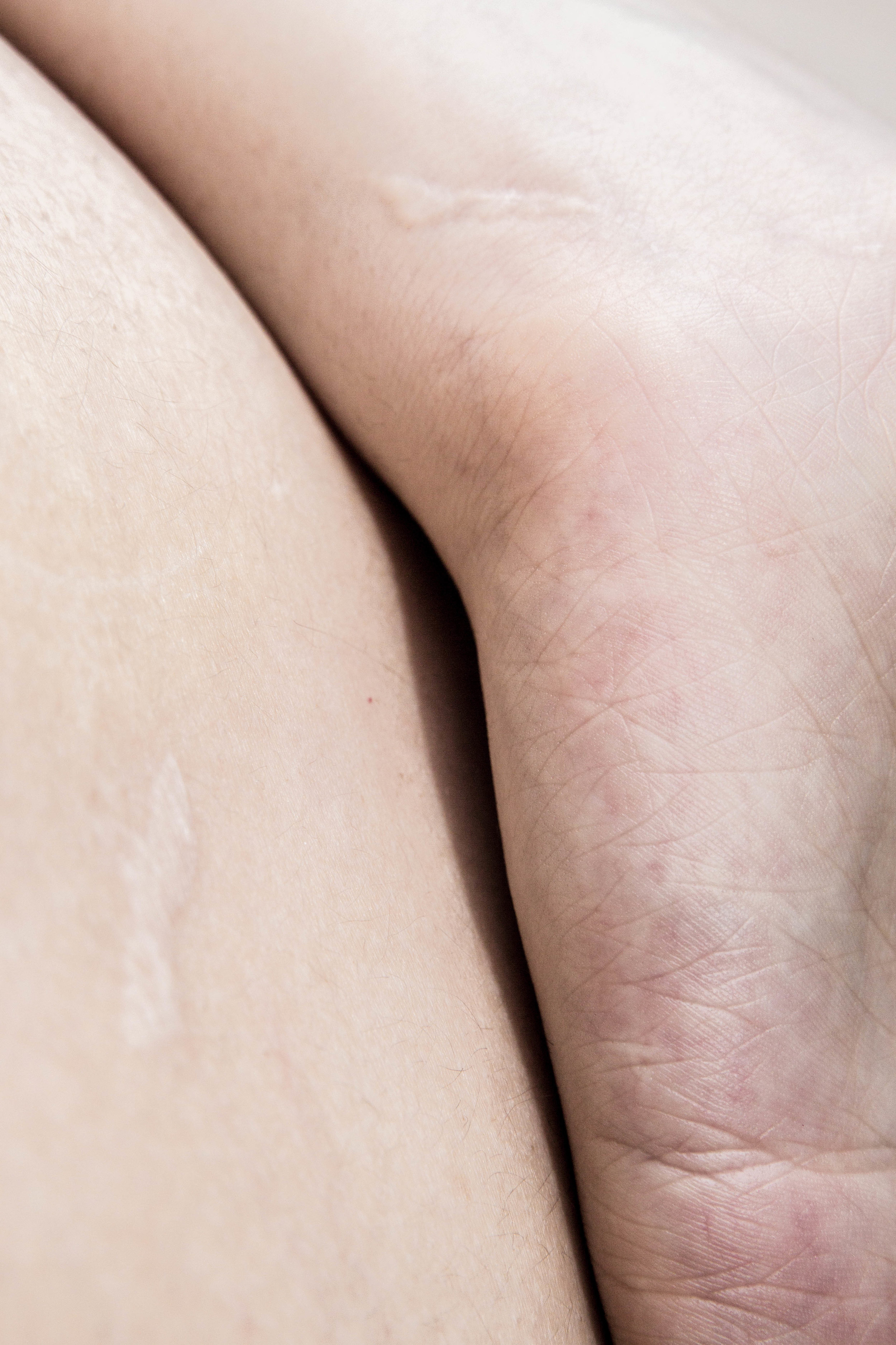 Skin-7.jpg