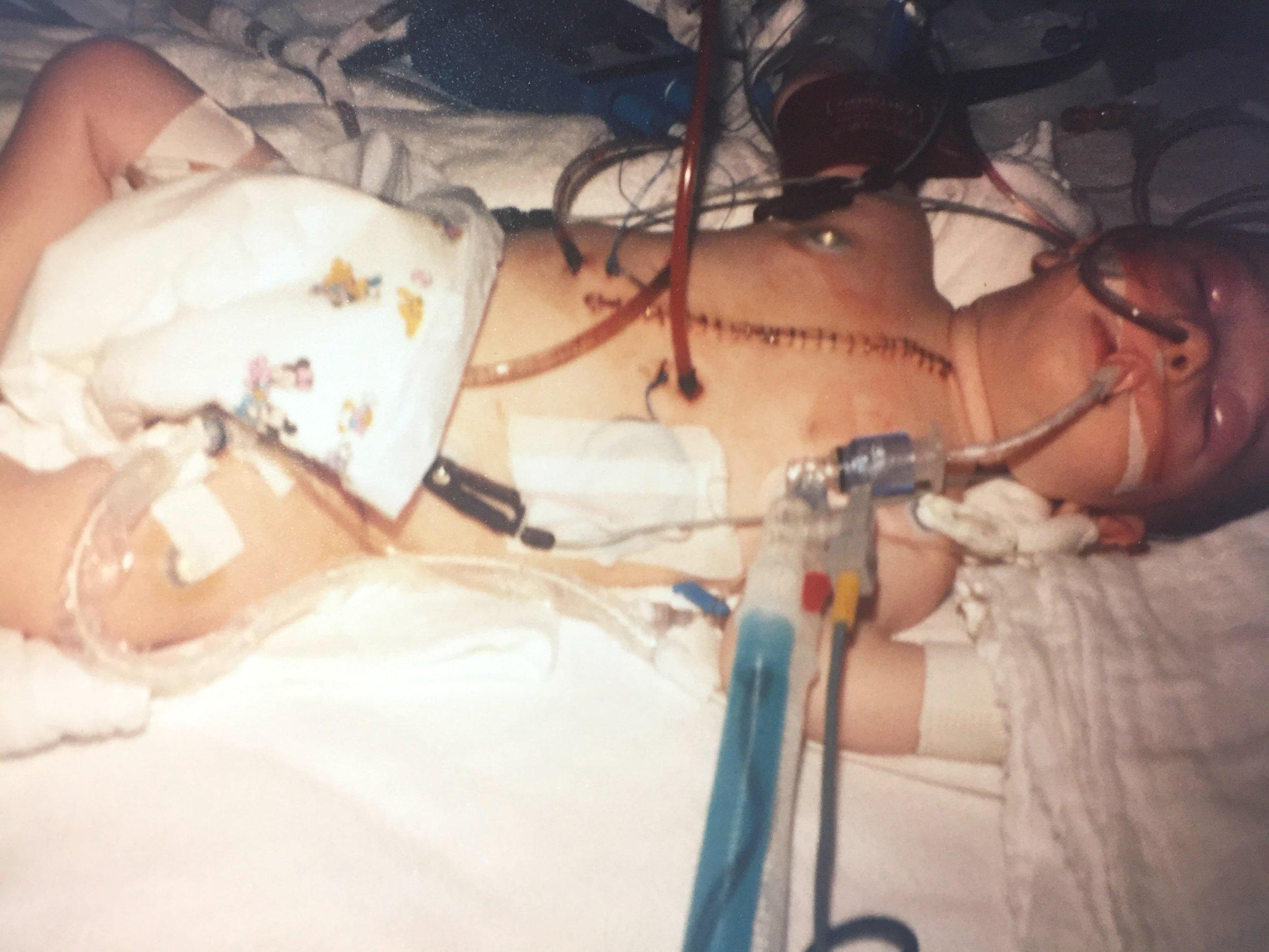 open-heart-surgery