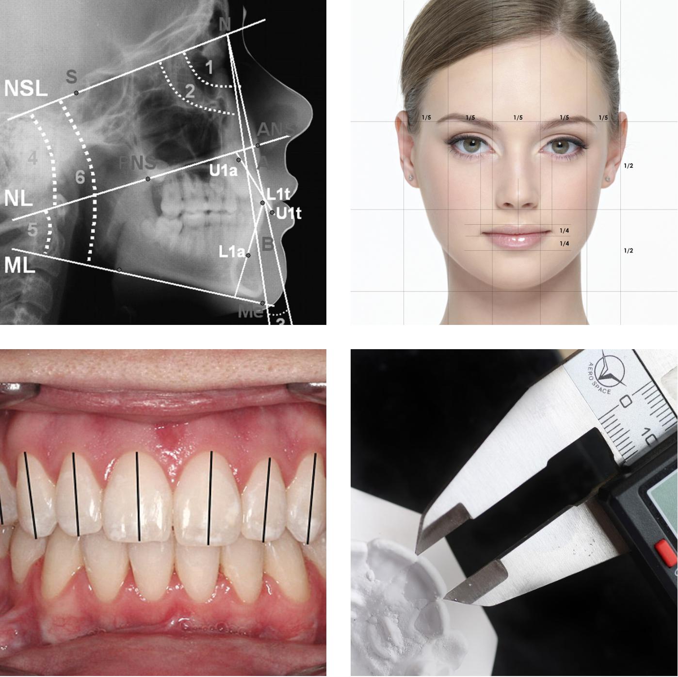 Orthodontic Records