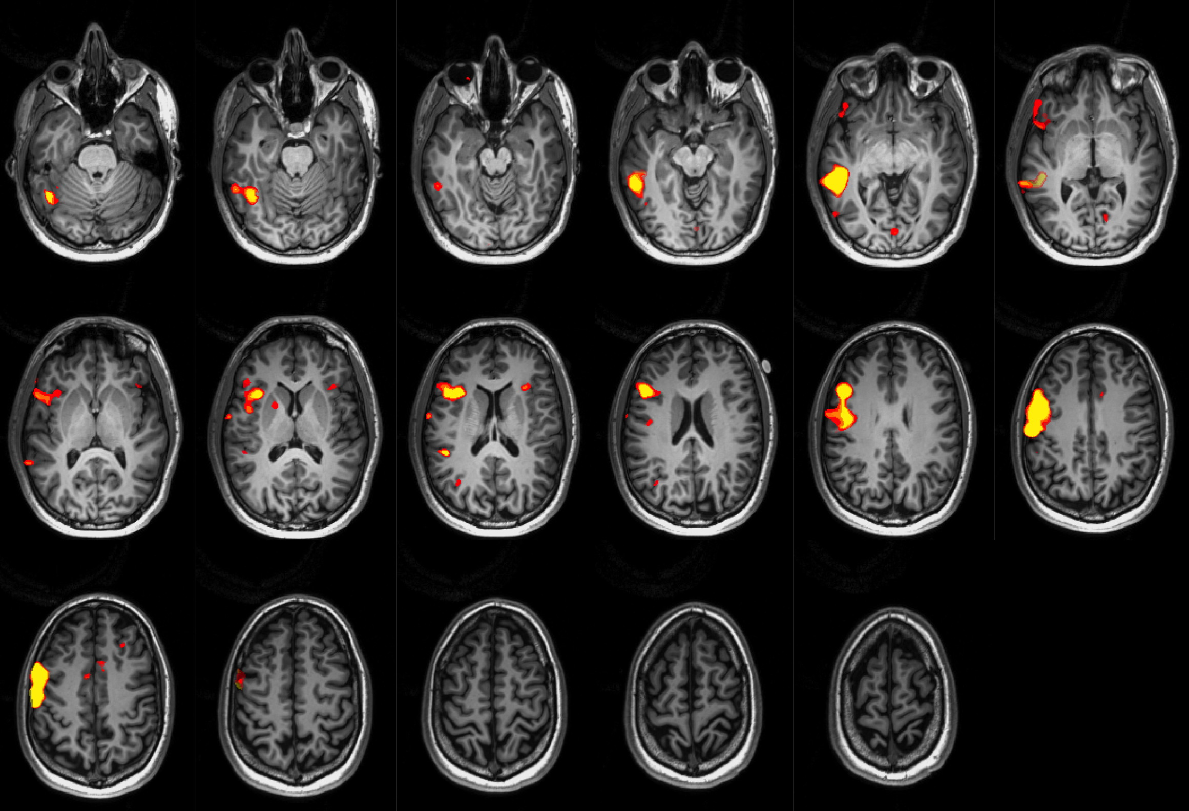 Language fMRI in a patient with right hemisphere dominance. Right of the image is the left of the brain (radiological conventions).