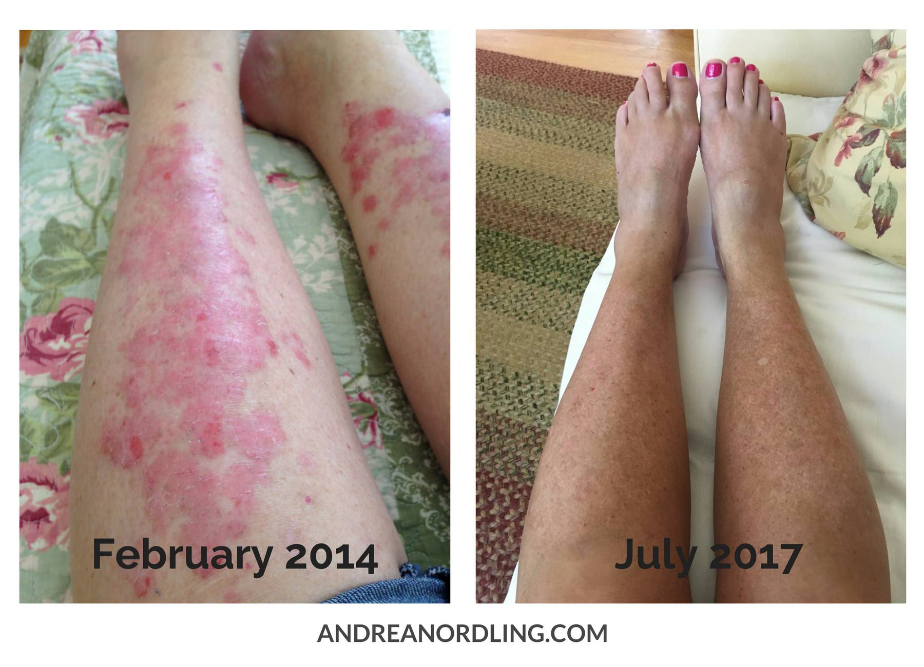 It is possible to reverse autoimmune disease, including psoriasis, with gut healing and a few key nutrients! Just look at these results from a client who had just resigned herself to the fact that she would have unsightly psoriasis all over her body unless she was willing to take scary prescriptions...but that wasn't the case, was it?!