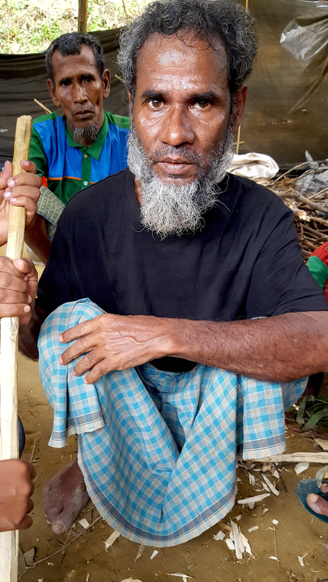 This elderly man was beaten by the Burmese military so severely that he has not been able to stop shaking since. Medical experts have suggested that his nerve endings may be damaged. The vast majority of Rohingya refugees who survived the journey to Bangladesh have severe health complications. However, the local hospital is very small and can only accommodate a small fraction of the injured.