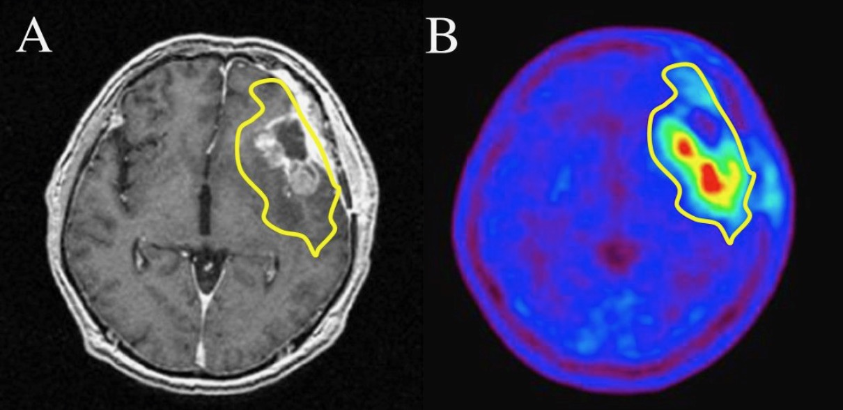 A: Magnetic resonance image (MRI) showing a Glioma.  B: Positron emission tomography (PET) image, showing relatively increased cell  metabolism in red and yellow areas. For information on when and how PET scans are used, read more  here.