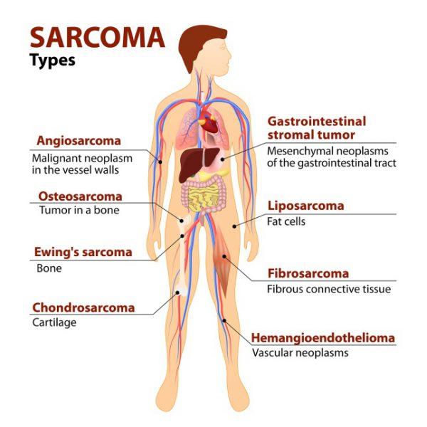 sarcoma-types-diagram-600x600.jpg