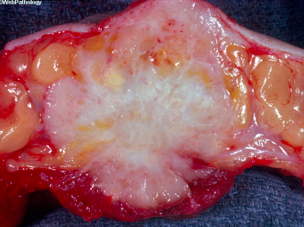 The photo from Web Pathology shows the hard, grayish, white appearance of infiltrating ductal carcinoma. Microcalcifications within the mass will often lead to a gritty appearance. The yellow-white portions of necrosis can also be seen.