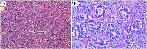 Tubular carcinoma