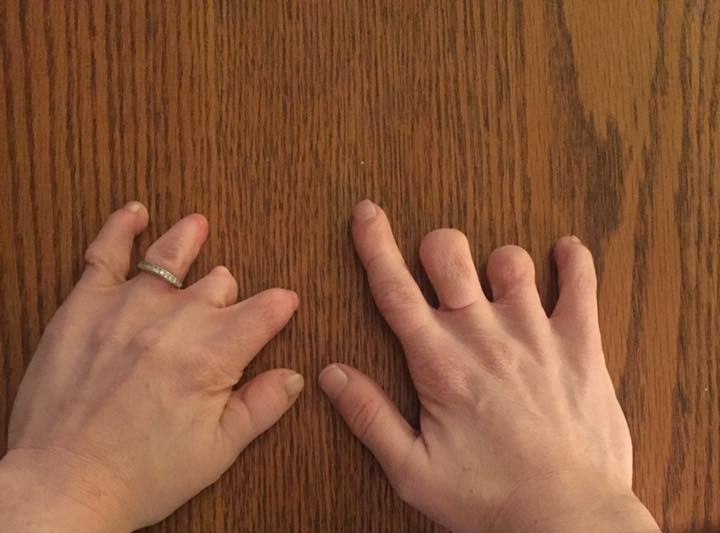 Amniotic band syndrome, syndactyly