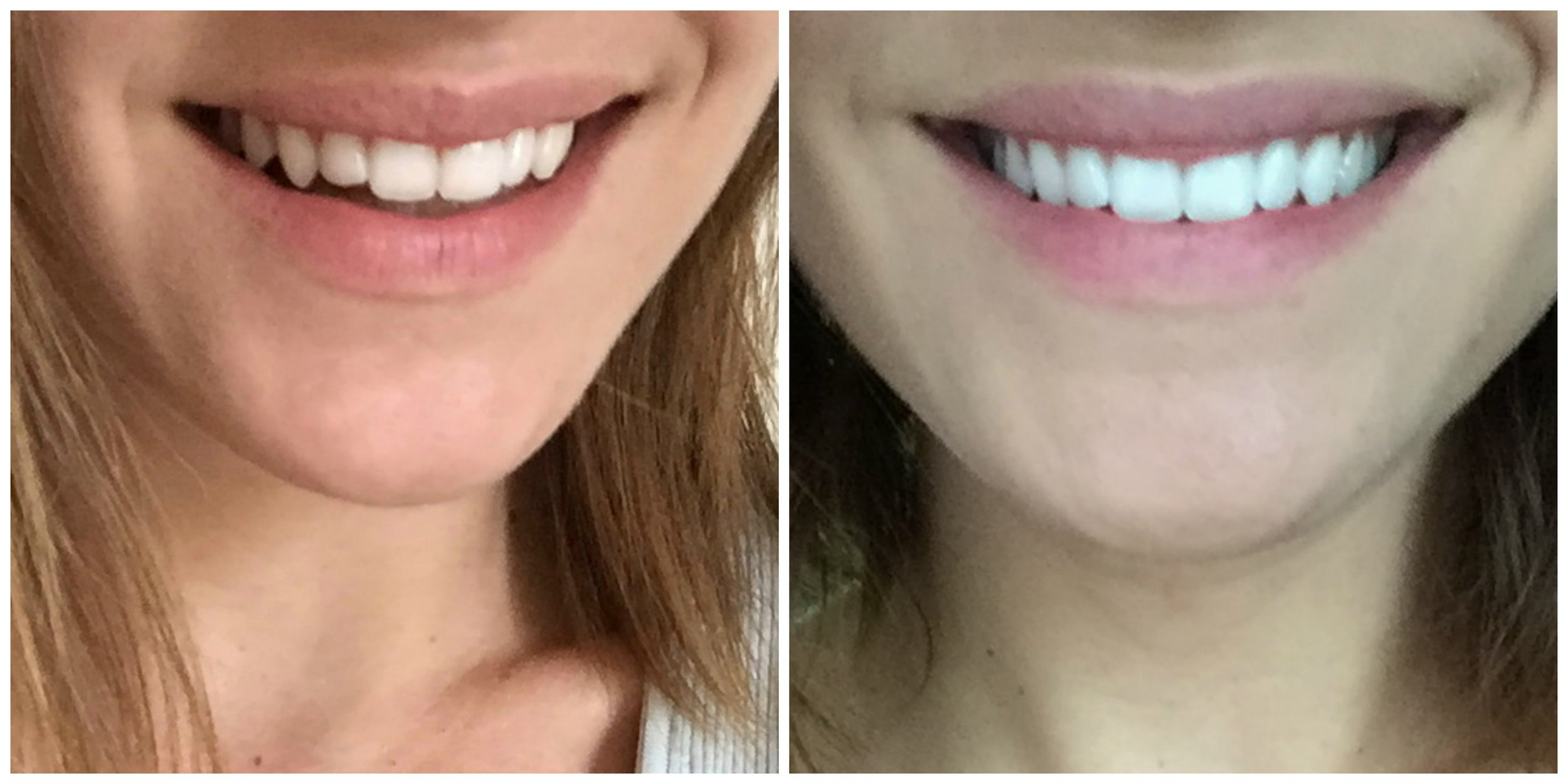 Does coffee stain your teeth | at home teeth whitening