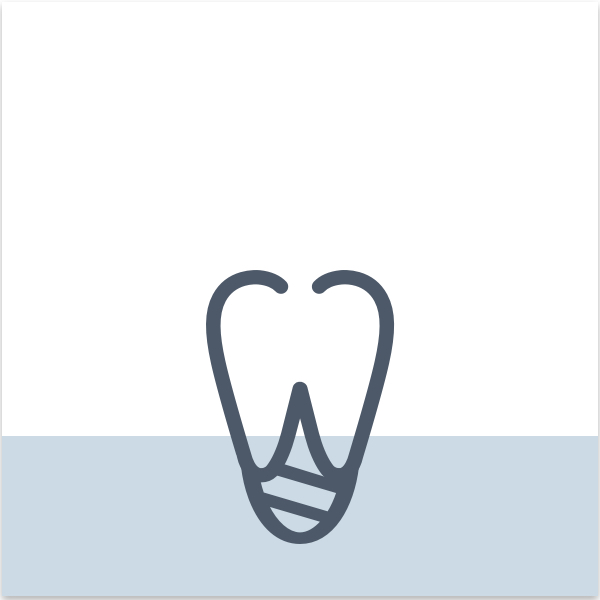 a great alternative for patients who are missing teeth or wearing dentures. This small titanium fixture offers permanent solution to mimic your natural tooth.