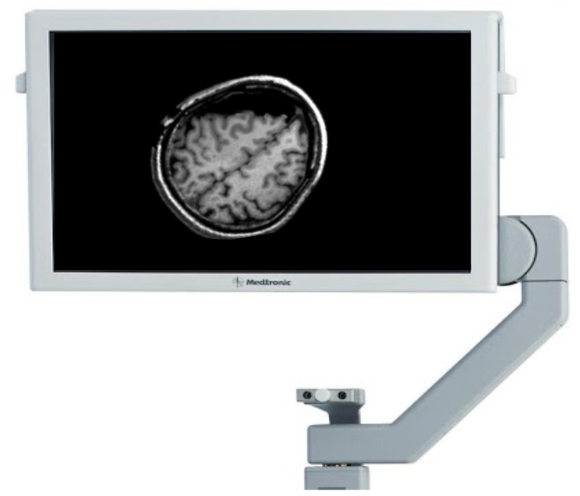 Our system will output a corrected MRI reflecting the updated position of the patient's anatomy. This corrected MRI replaces the old one in the surgeon's image-guided navigation system. This process is repeated as needed throughout the procedure.