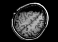 Corrected MRI