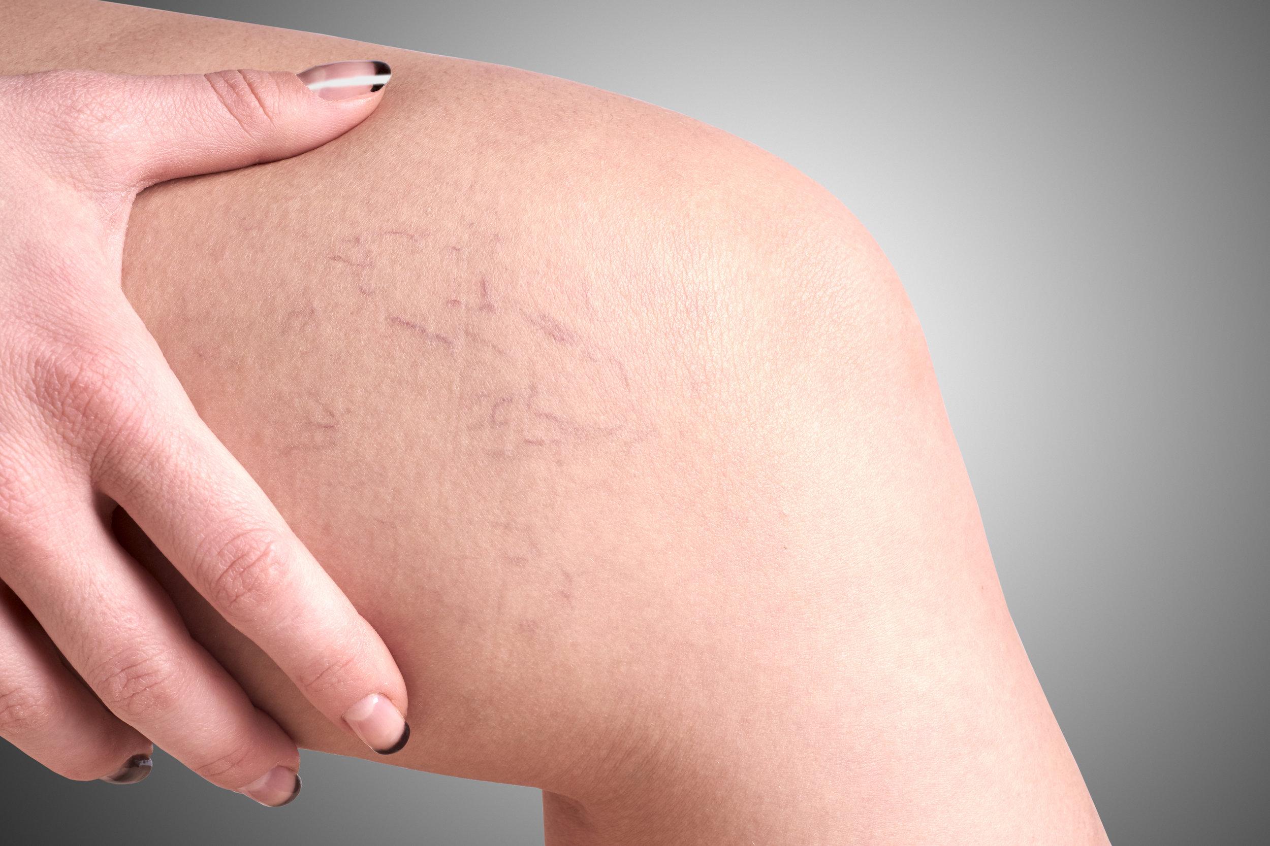 stock-photo-varicose-veins-in-women-362005085.jpg