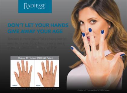 radiesse hands.png