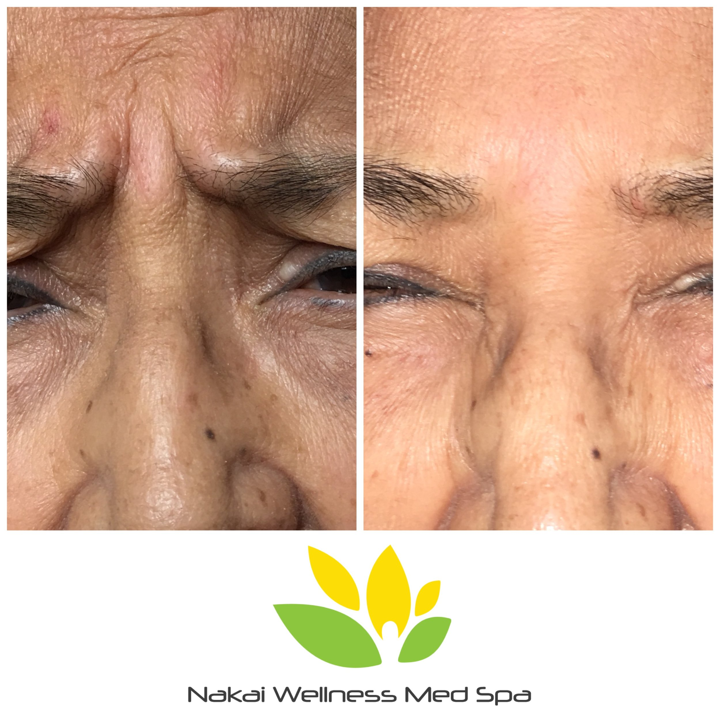 Before & After treating the Glabella - Two weeks post