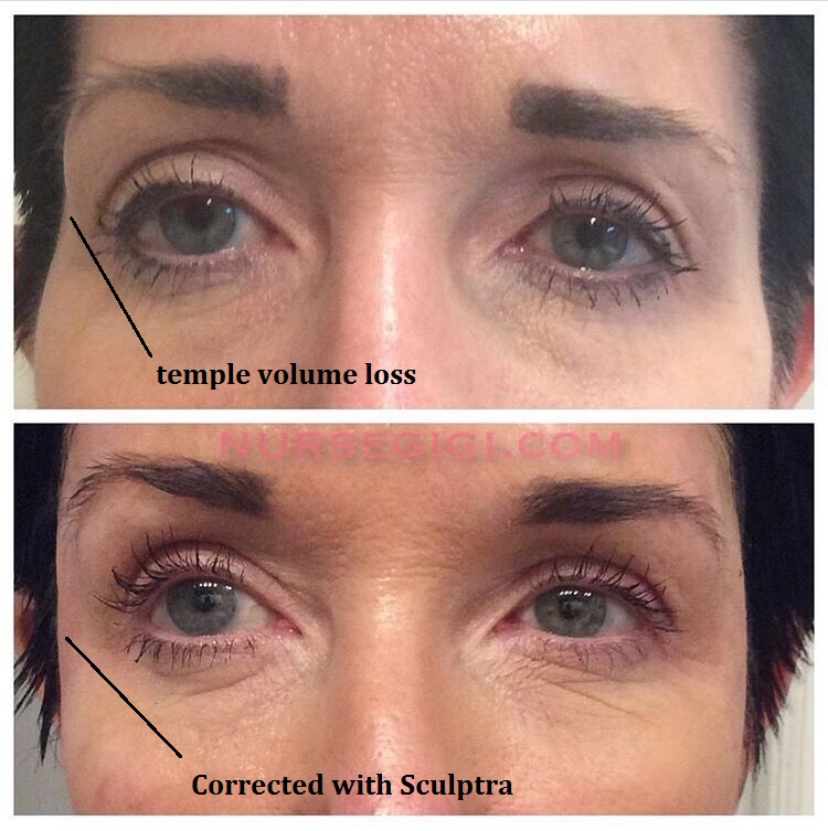 Sculptra for temples volume loss nyc