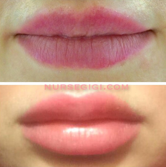 Volbella for Lips before and After