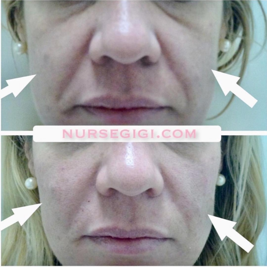 Revanesse VERSA Injection Before After Photo
