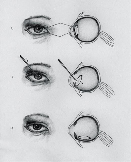 Couching procedure has been around since atleaset 600 BC, and is still practiced in certain areas of Africa, where a needle or thorn is used to push the catarct out of the way. The risk of blindness can apporach 80%.