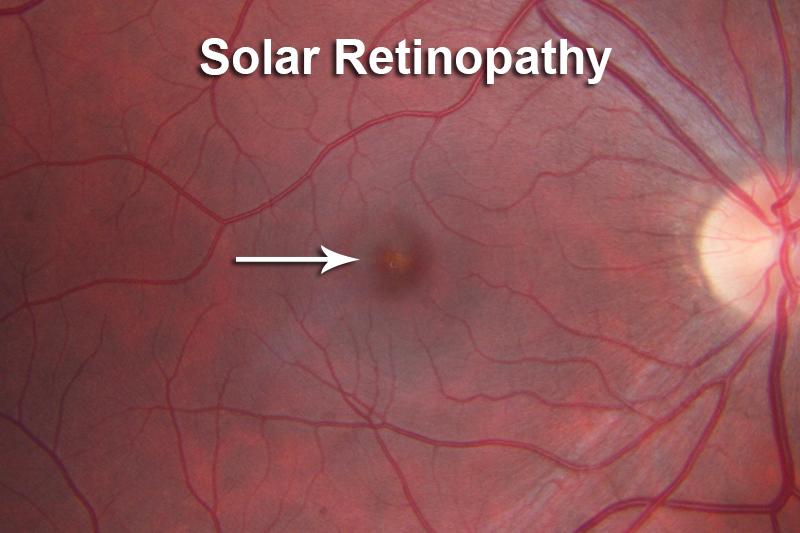 Permanent damage to the retina (yellow lesion).