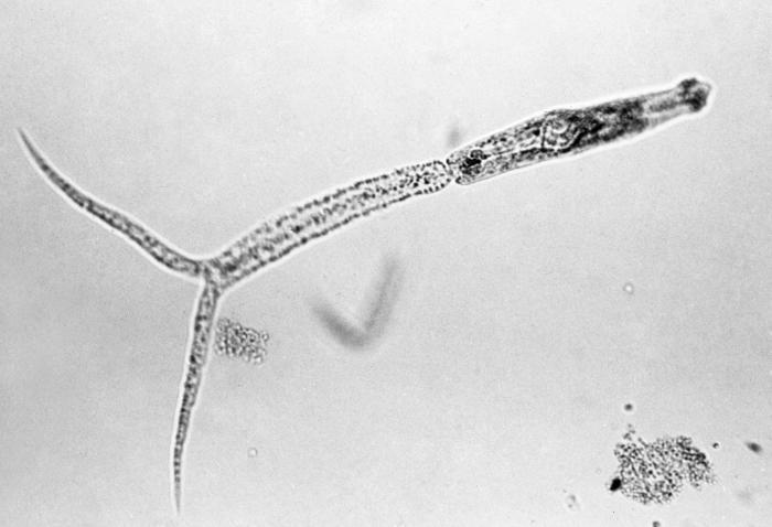 schistosomal cercaria  photo credit - cdc