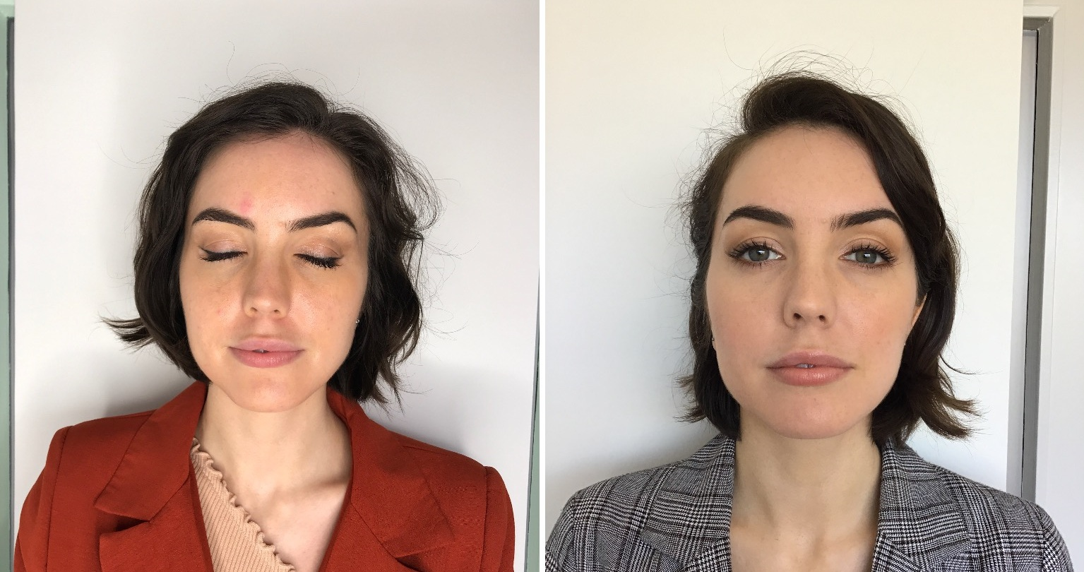 Before and after TMJ treatment: my masseter jaw muscles are less swollen and inflamed.