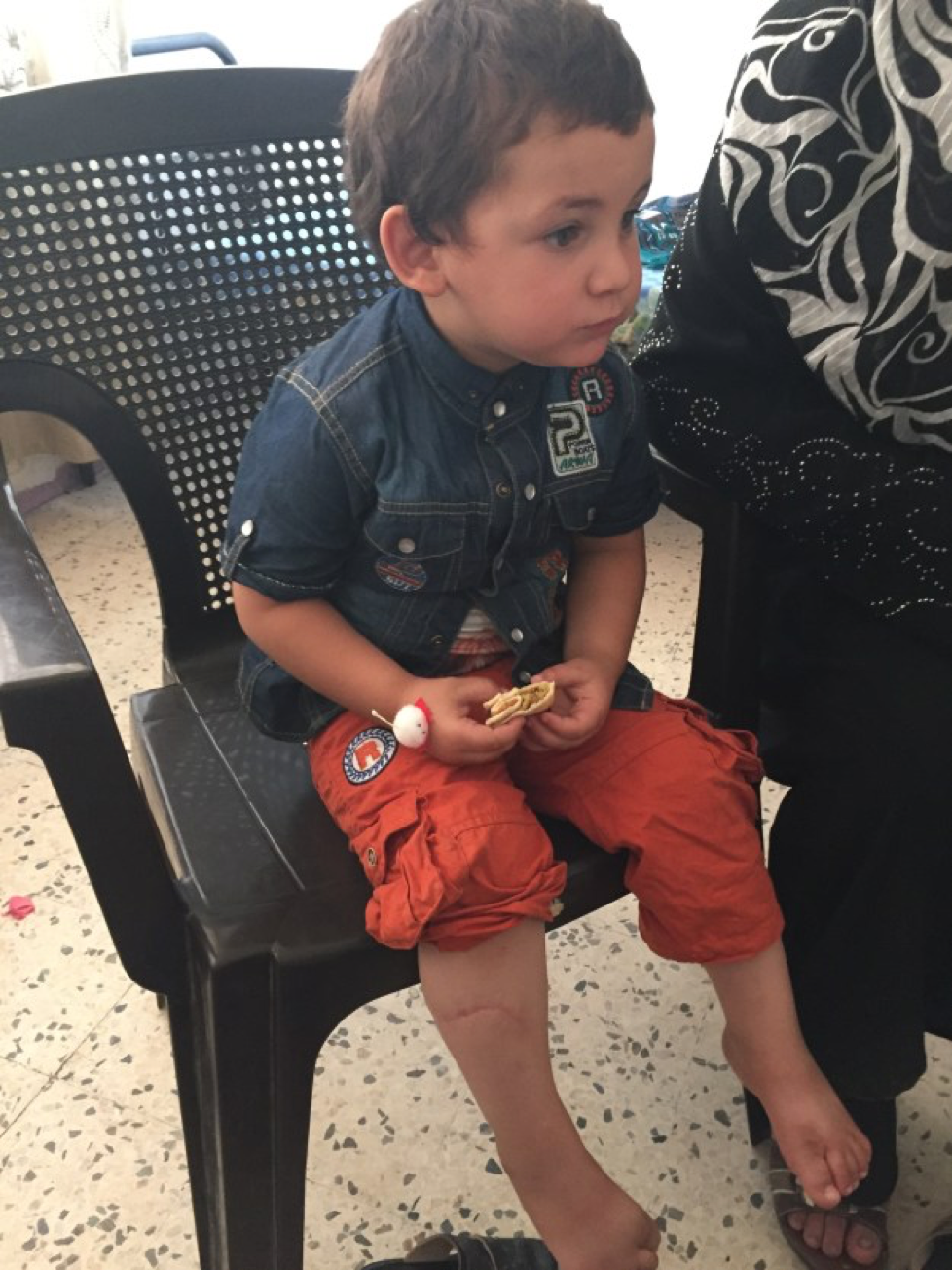 If you look at this little one's left shin, you can see the scar where he had trauma to his leg from a piece of farm equipment. He now has permanent ligamentous damage in his lower extremity, but due to his young age, he is compensating very well and will likely adapt as he grows if he is unable to get the surgery that he needs to correct it.