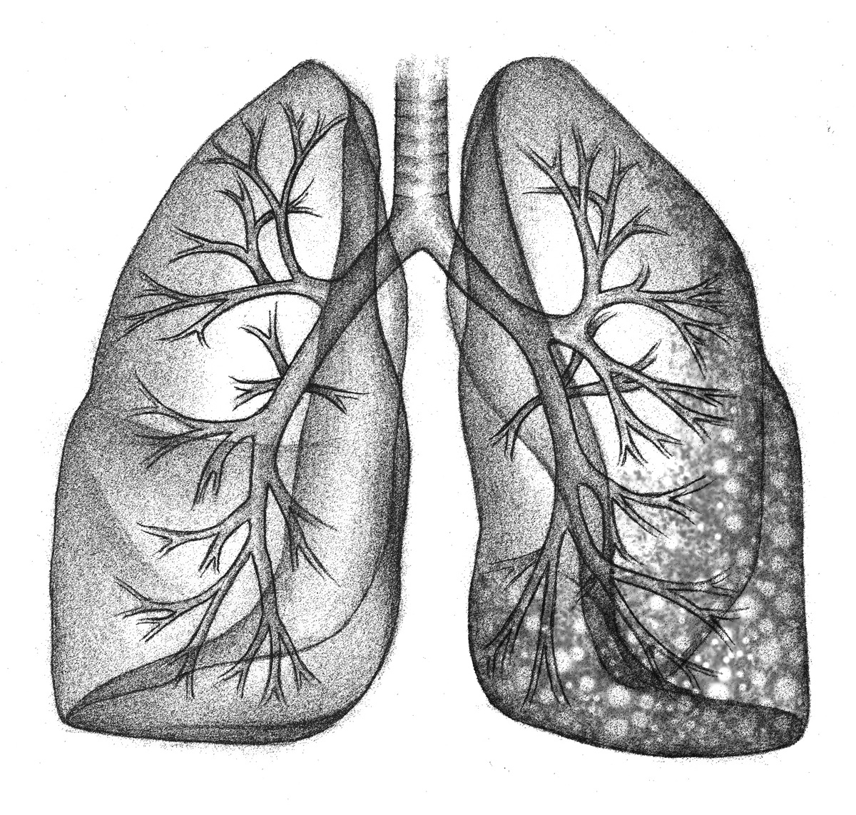 Healthy lung (L), with fibrosis (R)