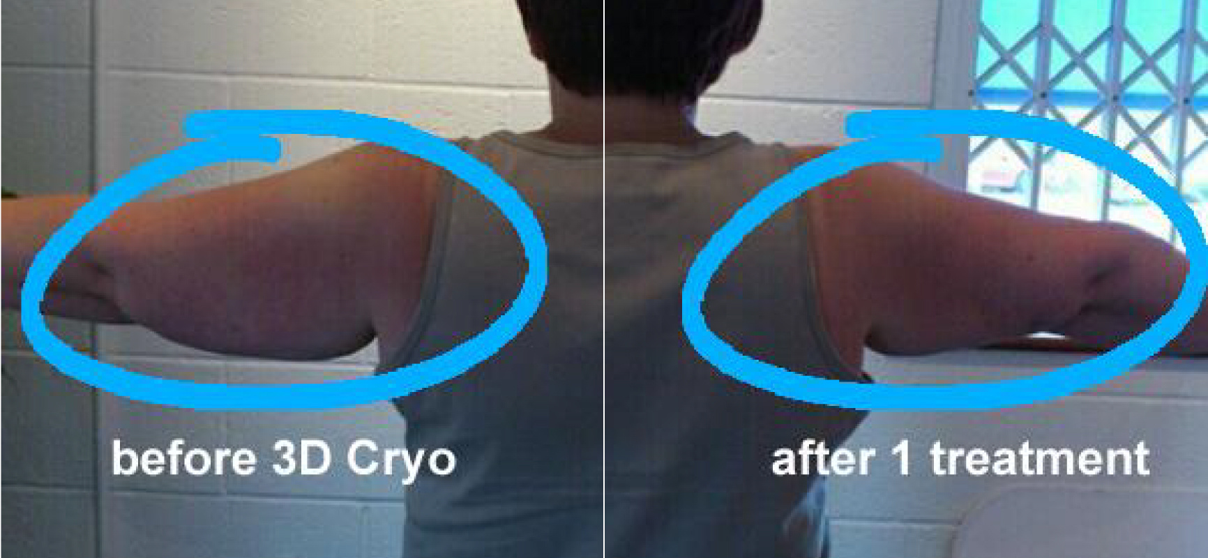 Results after 1 session of Cryolipolysis