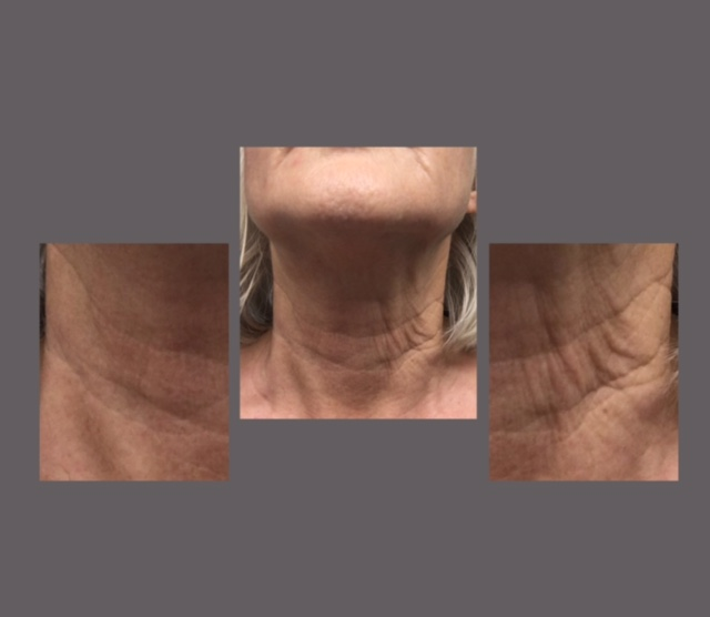 The image above shows a neck that has been treated with HIFU skin on one side and left untreated on the other. This image is taken 6 months after treatment. Please note this is an example only, results vary between different clients.