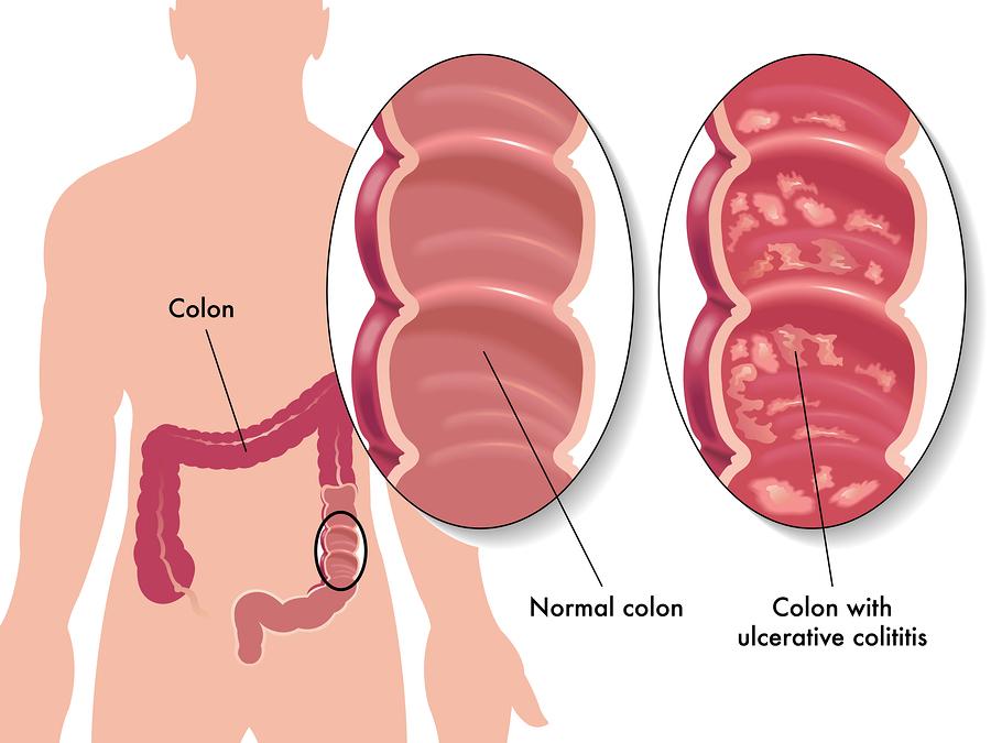 colitis crones