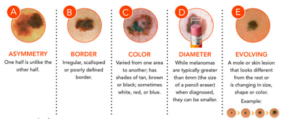 The ABCDE's of Melanoma Skin Cancer