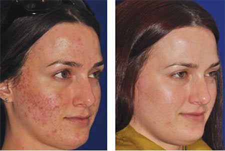 BEFORE & AFTER   Treatment by Jody Comstock, MD