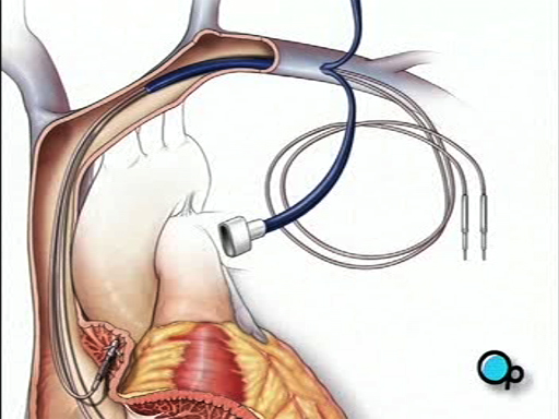 What is a Permanent Pacemaker Implant