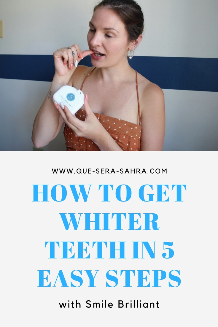 How to Get Whiter Teeth with Smille Brilliant