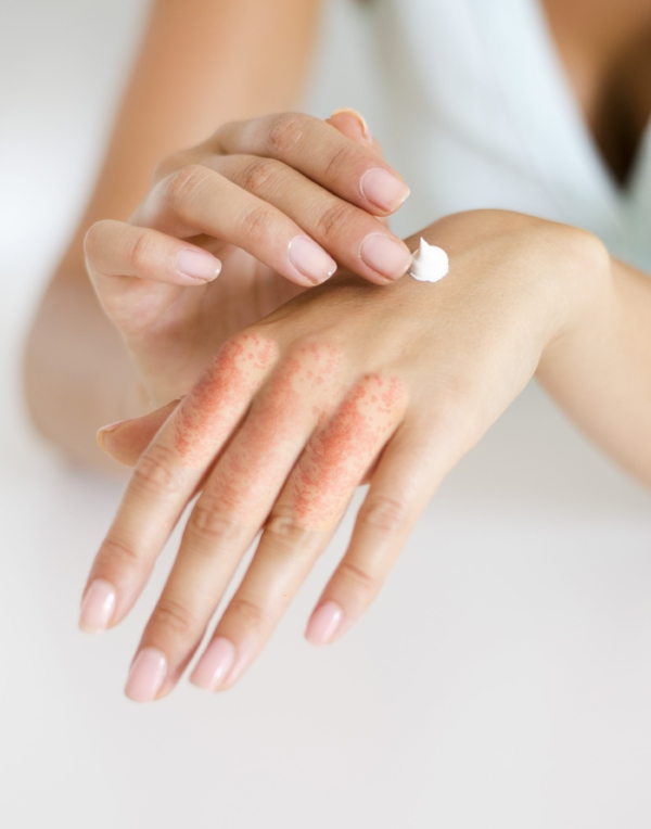 eczema-hands.jpg