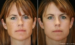 IPL Photo Therapy   Photorejuvenation helps clear unwanted sun damage, sun spots, and small vessels. It's also an excellent tool to help manage Rosacea.
