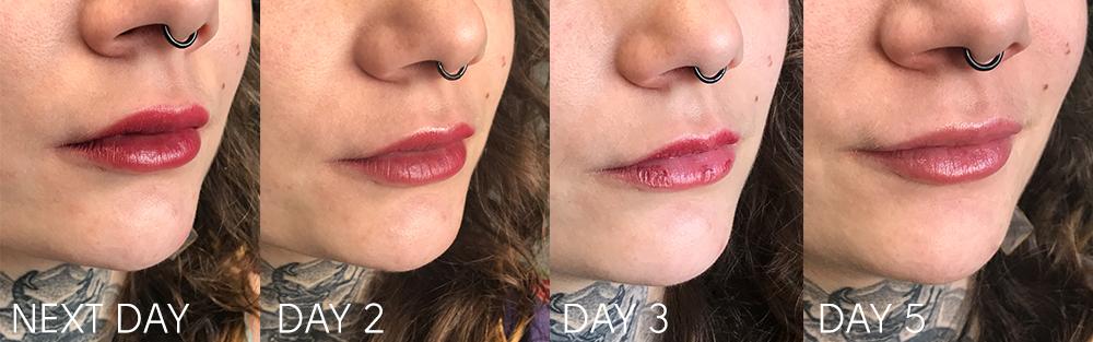 lip-healing.jpg