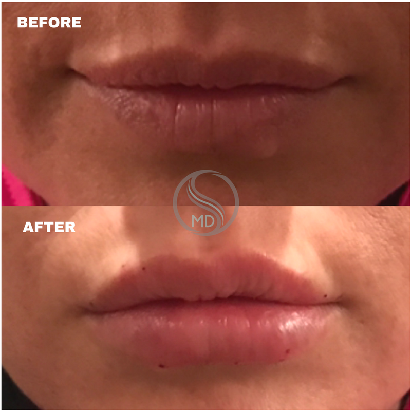 OSMD lip before and after.png