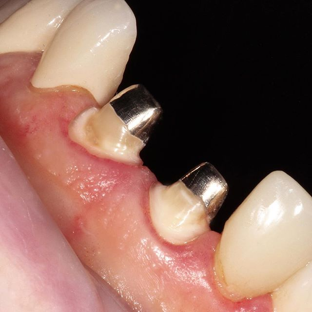 #8, 9 custom cast dowel core. Patient presented with missing #8, 9 crowns. Previous dentist attempted to bond E.max to