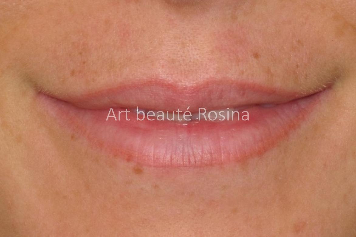 Résultat 1 mois après la pigmentation avec un contour légèrement plus marqué