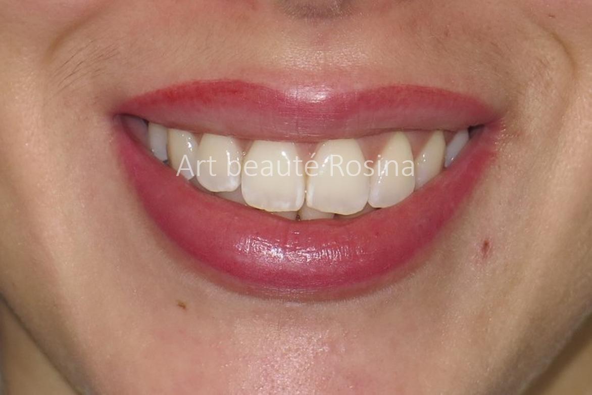 Contour des lèvres pigmenté avec un dégradé