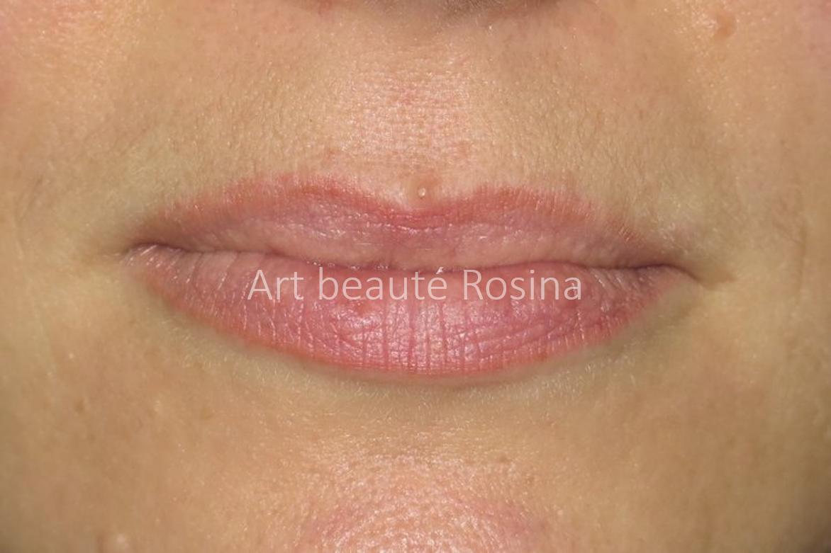 Résultat 1 mois après la pigmentation - lèvres plus lumineuses mais toujours très naturelles