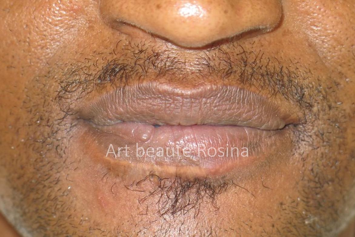 Lèvre du bas pigmentée - le galbe de la lèvre est retrouvé