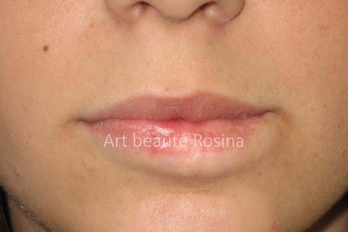 Résultat 1 mois après la pigmentation de la zone dépigmentée de la lèvre inférieure